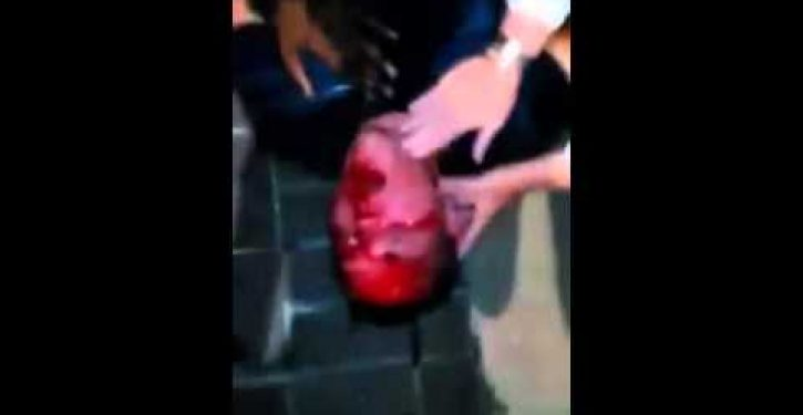 Savage beating of white man by black mob in Cincinnati not being investigated as hate crime