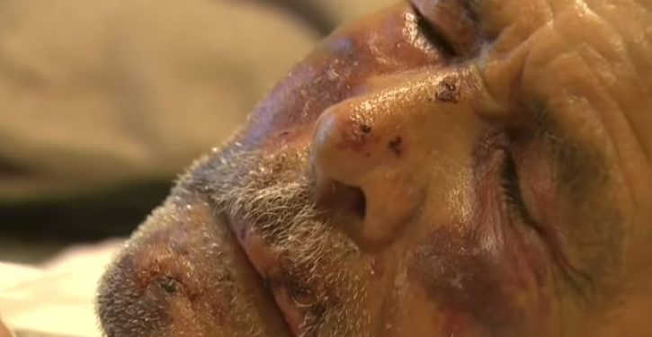 91-year-old Mexican beaten with concrete block, told 'go back to your own country': Whodunnit?