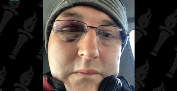 Man says bus driver attacked him because he couldn't speak French