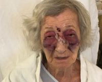 Holocaust survivor badly beaten by stranger in unprovoked attack