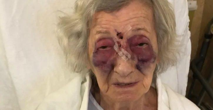 Holocaust survivor badly beaten by stranger in unprovoked attack