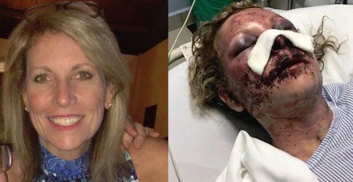 Mom recounts savage beating during vacation at Dominican Republic resort