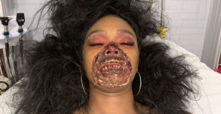 Dancer's zombie-inspired Halloween makeup mistaken for medical emergency at hospital