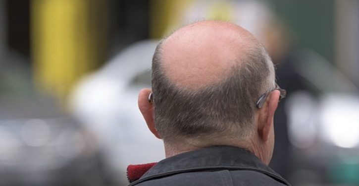 Scientists: Bald men hit harder by coronavirus