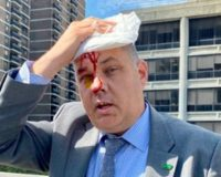 NYPD chief who kneeled with protesters in June injured by protesters at 'Stop the Violence' rally
