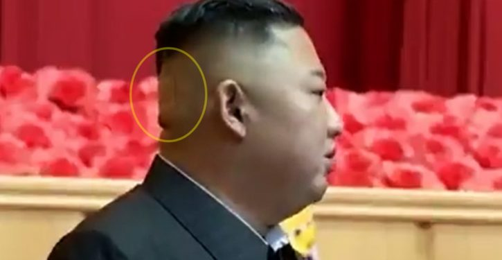 Speculation abounds over large bandage seen on back of Kim Jong-Un's head